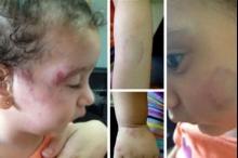"""فيديو يوثق لحظة الاعتداء على الطفلة """"شام"""" في حضانة برام ..."""