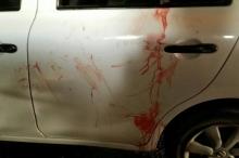 كمين مسلّح يصيب ثلاثة مستوطنين بجروح خطيرة قرب رام الله ...