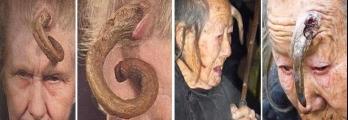 """بالصور : """"القرون الجلدية"""".. من أغرب الحالات المرضية حول العالم"""