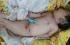 """بسبب مرض نادر.. ولادة """"حورية"""" في غانا"""